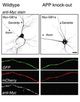 Complex formation of APP with GABAB receptors links axonal trafficking to amyloidogenic processing